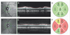Optical coherence tomography to measure the progression of myelopathy in adrenoleukodystrophy