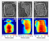 Non-Invasive Optical Coherence Tomography Data-Based Quantitative Algorithm for the Assessment of Residual Adhesive on Bracket-Removed Dental Surface