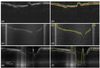Dynamic programming and automated segmentation of optical coherence tomography images of the neonatal subglottis: enabling efficient diagnostics to manage subglottic stenosis