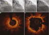 Ongoing thrombosis assessed by optical coherence tomography