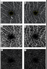 Association between smoking history and optical coherence tomography angiography findings in diabetic patients without diabetic retinopathy