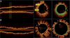 Optical coherence tomography study of healing characteristics of paclitaxel-eluting balloons vs. everolimus-eluting stents for in-stent restenosis: the SEDUCE (Safety and Efficacy of a Drug elUting balloon in Coronary artery rEstenosis) randomised clinica