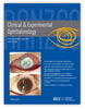Measurement of small melanocytic choroidal lesions: ultrasound versus swept-source optical coherence tomography
