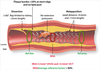 Clinical use of intracoronary imaging. Part 1: guidance and optimization of coronary interventions. An expert consensus document of the European Association of Percutaneous Cardiovascular Interventions