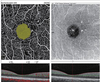 Evaluation of Foveal Avascular Zone and Capillary Plexuses in Diabetic Patients by Optical Coherence Tomography Angiography