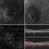 Vascular maturity of type 1 and type 2 choroidal neovascularization evaluated by optical coherence tomography angiography