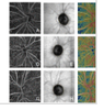 Use of optical coherence tomography angiography for assessment of microvascular changes in the macula and optic nerve head in hypertensive patients without hypertensive retinopathy