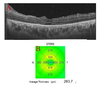 Optical Coherence Tomography Angiography in Patients with Behcet Uveitis