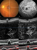 Characterizing Branching Vascular Network Morphology in Polypoidal Choroidal Vasculopathy by Optical Coherence Tomography Angiography