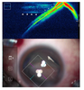 Quantification of the peripheral vitreous after vitreous shaving using intraoperative optical coherence tomography