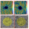 The Macular Choriocapillaris Flow in Glaucoma and Within-Day Fluctuations: An Optical Coherence Tomography Angiography Study