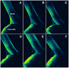 A Novel Technique of Contrast-Enhanced Optical Coherence Tomography Imaging in Evaluation of Clearance of Lipids in Human Tears