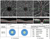 Decreased Retinal Vascular Density in Alzheimer's Disease (AD) and Mild Cognitive Impairment (MCI): An Optical Coherence Tomography Angiography (OCTA) Study