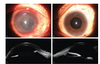 Hallermann-Streiff syndrome with uncommon ocular features, ultrasound biomicroscopy and optical coherence tomography findings A case report