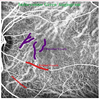 An Update on Choroidal Layer Segmentation Methods in Optical Coherence Tomography Images: a Review