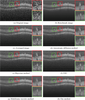 Multiframe denoising of high-speed optical coherence tomography data using interframe and intraframe priors