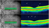 Vitreous Hyper-Reflective Dots in Optical Coherence Tomography and Cystoid Macular Edema after Uneventful Phacoemulsification Surgery