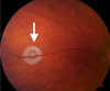 Optical Coherence Tomography Angiography Findings in a Case of Cosmetic Laser Induced Retinal Injury