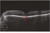 To Evaluate the Effect of Chronic Obstructive Pulmonary Disease on Retinal and Choroidal Thicknesses Measured by Optical Coherence Tomography