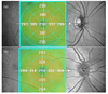 Influence of puberty on retinal microcirculation in children with type 1 diabetes without retinopathy using optical coherence tomography angiography