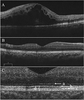 Optical coherence tomography findings as a predictor of clinical course in patients with branch retinal vein occlusion treated with ranibizumab