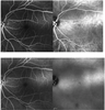 Optical Coherence Tomography Angiography (OCT-A) in a Patient with Occult Retinal Dysfunction