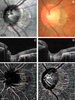 Clinical features of microvasculature in subzones of parapapillary atrophy in myopic eyes: an OCT-angiography study