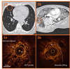 Optical coherence tomography (OCT) in patients with acute respiratory failure on the ICU