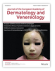 Line-field Confocal Optical Coherence Tomography of pyogenic granulomas in children: report of two cases