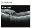 Validation and Clinical Applicability of Whole-Volume Automated Segmentation of Optical Coherence Tomography in Retinal Disease Using Deep Learning