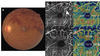 Grading of macular perfusion in retinal vein occlusion using en-face swept-source optical coherence tomography angiography: a retrospective observational case series