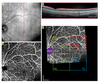 Quantitative Handheld Swept-Source Optical Coherence Tomography Angiography in Awake Preterm and Full-Term Infants