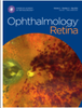 Signal strength reduction effects in optical coherence tomographic angiography
