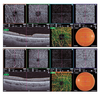 Optical coherence tomography angiography findings in patients with Alport syndrome