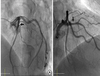 Optical Coherence Tomography: Defined Plaque Erosion after Removal of a Coronary Guidewire