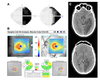Rapid homonymous hemi-macular atrophy of the optical coherence tomography ganglion cell complex after stroke