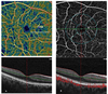 Retinal and Choroidal Vascular Changes in Eyes with Pseudoexfoliation Syndrome: a Comparative Study Using Optical Coherence Tomography Angiography