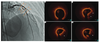 Successful optical coherence tomography-guided treatment in a 19-year-old patient with ST-segment elevation myocardial infarction caused by plaque erosion