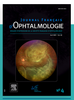 Evaluation of the retinal nerve fiber layer with optic coherence tomography in patients with alcohol use disorder