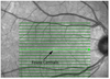 Determining the Location of the Fovea Centralis Via En-Face SLO and Cross-Sectional OCT Imaging in Patients Without Retinal Pathology
