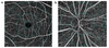 Evaluation of retinal vascular density and related factors in youth myopia without maculopathy using OCTA