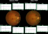 Retinal blood flow reduction after panretinal photocoagulation in Type 2 diabetes mellitus: Doppler optical coherence tomography flowmeter pilot study