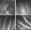 In vivo imaging of palisades of Vogt in dry eye versus normal subjects using en-face spectral-domain optical coherence tomography