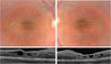 Swept source optical coherence tomography and optical coherence tomography angiography in pediatric enhanced S-cone syndrome: a case report