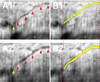 Pilot study assessing the structural changes in posttrabecular aqueous humor outflow pathway after trabecular meshwork surgery using swept-source optical coherence tomography