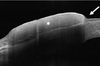 Utility of high-resolution anterior segment optical coherence tomography in the diagnosis and management of sub-clinical ocular surface squamous neoplasia