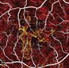 OCT Angiography Opens Eyes