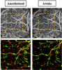 Differences in cerebral blood vasculature and flow in awake and anesthetized mouse cortex revealed by quantitative optical coherence tomography angiography
