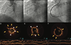 Cracking the Plaque With Coronary Lithotripsy: Mechanistic Insights From Optical Coherence Tomography