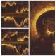The impact of blood pressure variability on coronary arterial lumen dimensions as assessed by optical coherence tomography in patients with ST-elevation myocardial infarction